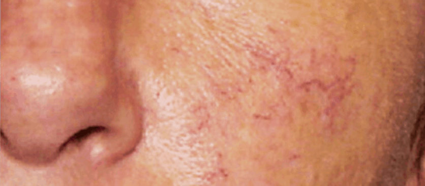Brocken facial capillaries