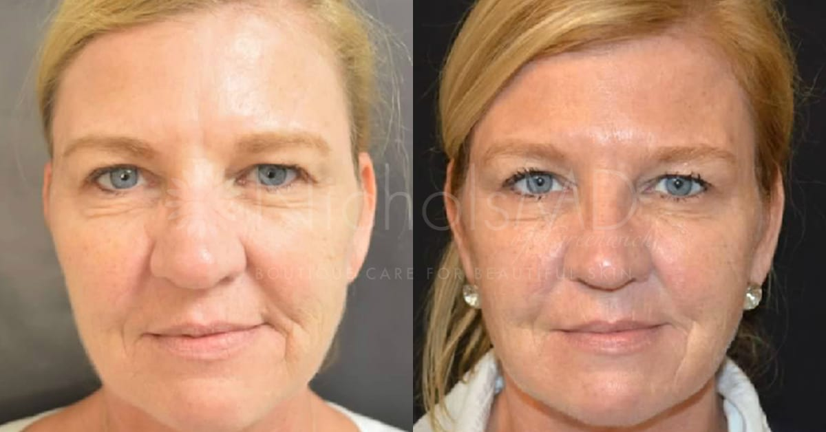 Non-surgical Liquid Lift - NicholsMD of Greenwich