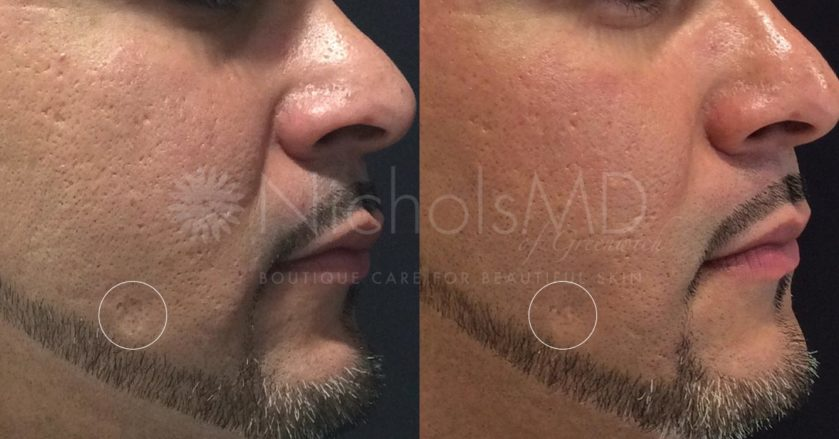Fillers - NicholsMD of Greenwich