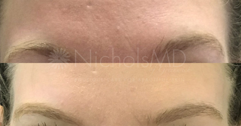 Before And Afters Archive - NicholsMD of Greenwich