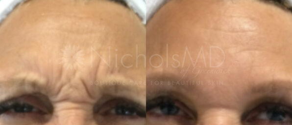 NMD- Botox® Upper Face Treatment